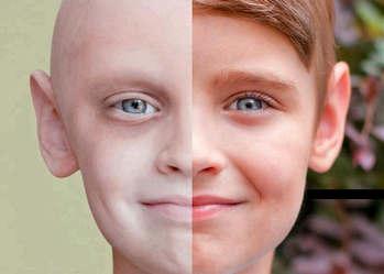 علائم سرطان